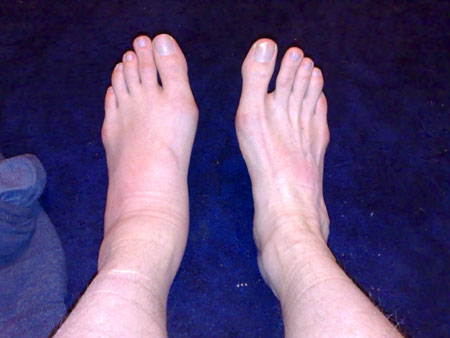 Lukes Feets